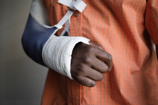 Man With Broken Arm In Cast