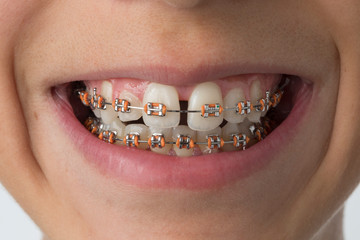Close up of a mouth with dental braces Fotomurales