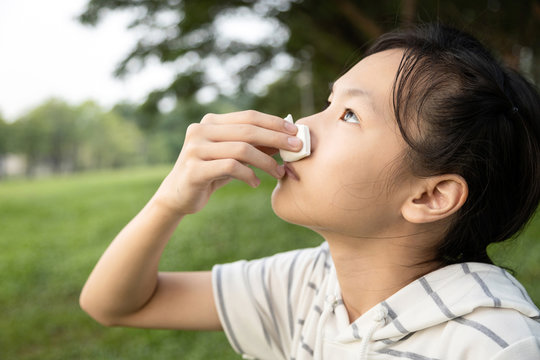 Sick asian child girl using tissue paper for stop bleeding from the nose,female teenage with nosebleed or epistaxis suffer from allergic rhinitis,respiratory or nose injury, bleeding from an accident