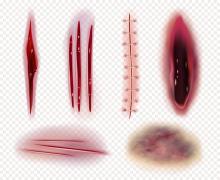 Realistic scars. Cuts wounds bruises bruises blood stitches vector templates collection. Illustration injury trauma, gross laceration coloring