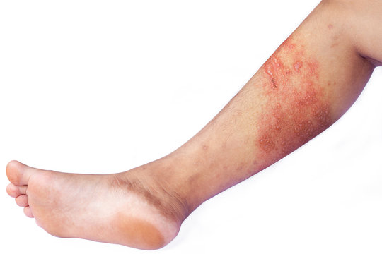 Skin infected Herpes zoster virus on the leg.
