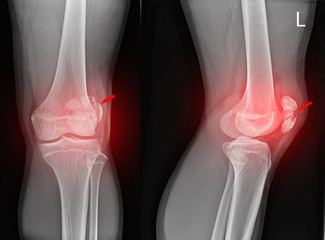 Knee joint x-ray fracture patella.