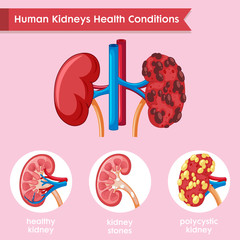 Poster Kids Scientific medical illustration of kidney disease