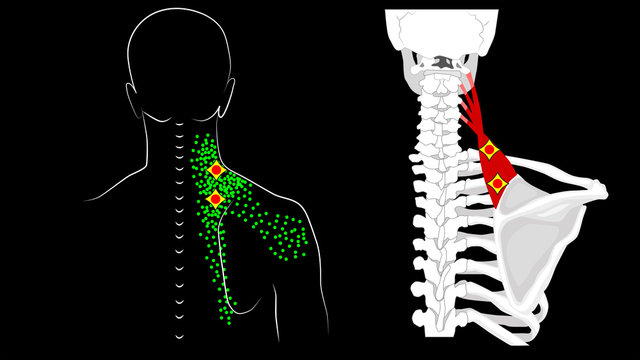Levator scapulae muscle. Trigger points and muscle structure. Pain in the neck and shoulder blade.