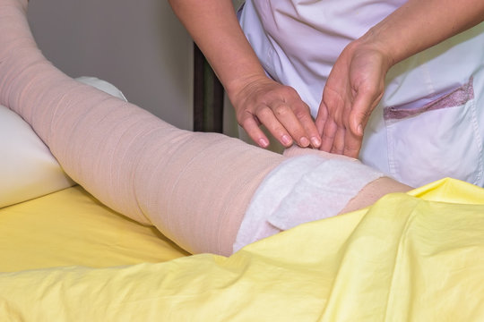 Lymphedema management: Wrapping leg using multilayer bandages to control Lymphedema. Part of complete decongestive therapy (cdt) and manual lymphatic drainage (MLD)