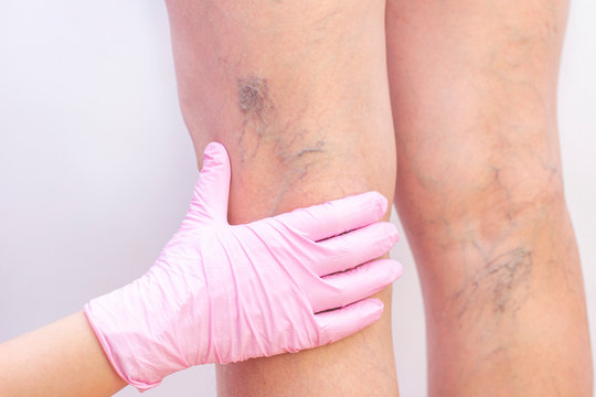 Female legs with varicose veins. At the doctors surgeons appointment. doctors hands in gloves. Concept of human health and disease. Vascular diseases, problems of varicose veins
