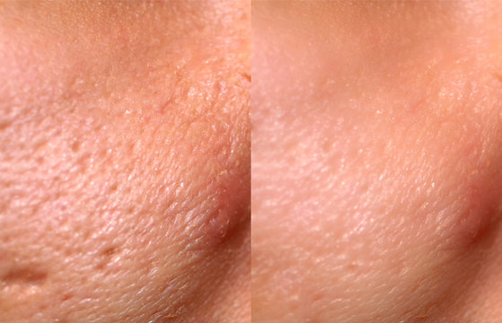 Comparison of skin before and after laser resurfacing. Skin with acne, acne scars, enlarged pores.