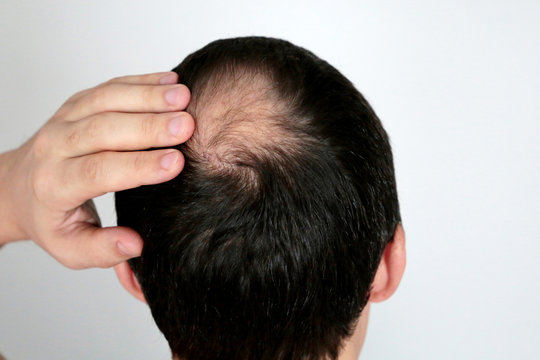 Baldness, man concerned about hair loss. Male head with a bald on white background