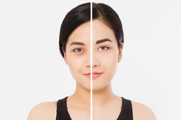 Closeup before after asian woman face. Before-after cosmetic procedures. Skin care wrinkled face, dark circles under eyes. Before-after anti-aging facelift treatment. Facial skincare beauty contouring Wall mural