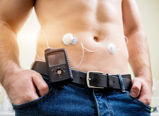 Diabetic man with an insulin pump connected in his abdomen and keeping the insulin pump