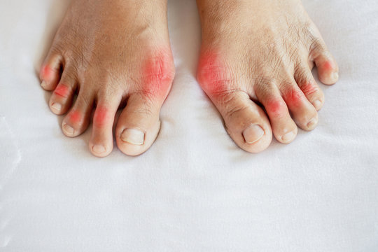 closeup woman feet suffering from joint pain with gout in finger