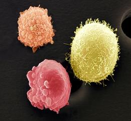 Skin cancer cells, SEM