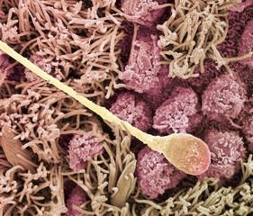 Sperm cell, SEM