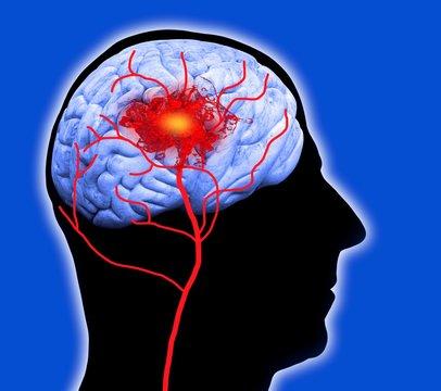 Human brain showing stroke
