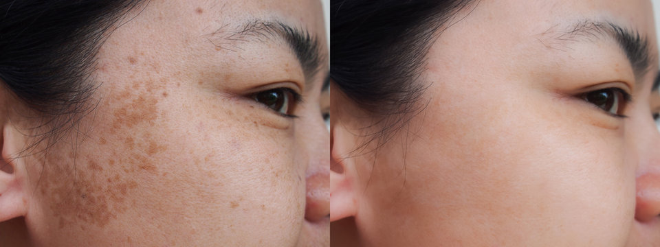 Closeup asian woman face before and after dark spot melasma pigmentation skin facial treatment.Problem skincare and health concept.