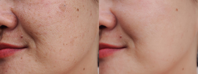 Image before and after spot melasma pigmentation facial treatment on face asian woman.Problem skincare and health concept. Wall mural