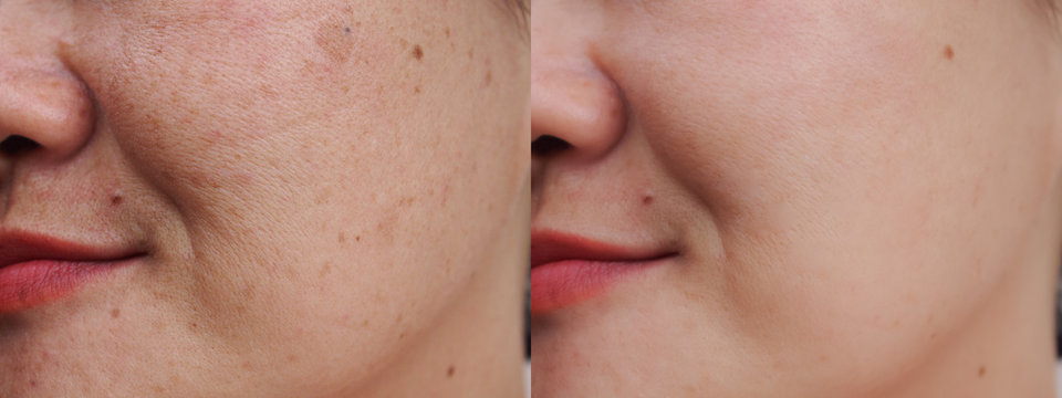 Image before and after spot melasma pigmentation facial treatment on face asian woman.Problem skincare and health concept.