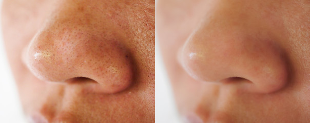 Image closeup before and after treatment small pimple acne blackheads on skin of  nose and spot melasma pigmentation  on facial Asian woman .Problem skincare and health concept.