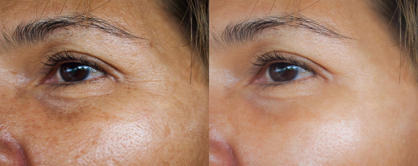 Image before and after treatment rejuvenation surgery on face asian woman concept.Closeup wrinkles dark spots pigmentation on senior female. Wall mural