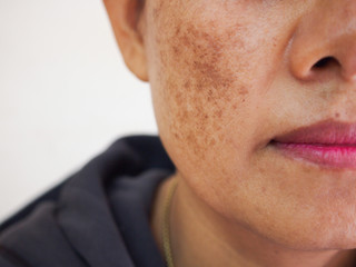 Problem skincare and health concept.Wrinkles,melasma,Dark spots,freckles,dry skin on face middle age asian woman.