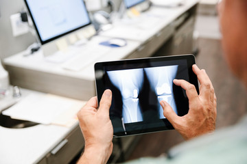 Male doctor looking at knee x-ray on digital tablet in clinic