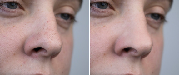 Black dots, clogged pores on the nose of a man close-up. A patient at a beautician appointment. Before and after facial cleansing Wall mural