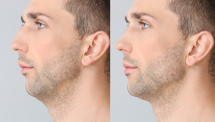 Young man before and after plastic operation on light background Wall mural