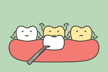 dental veneers installation procedure for tooth whiten - teeth cartoon vector flat style