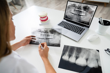Doctor Looking At Teeth X-ray On Computer