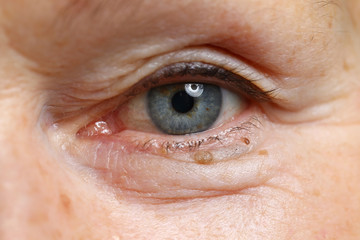 Old woman eye closeup pojrtrait. Cataract treatment medical concept. Vision dysfunction laser correction