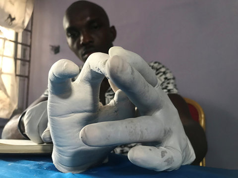 John Amanam works on a prosthetic hand at his company in Uyo