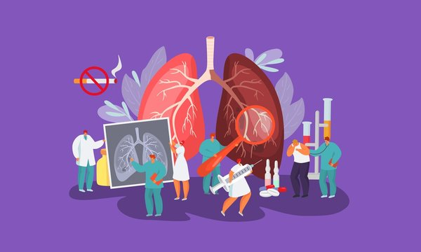 Lungs disease, patient and people doctors team vector illustration concept. Medical workers listen to ill man lungs, examine, prescribe injections and pills. Ban on smoking cigarettes.