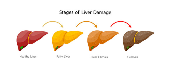 Stages of liver damage. Liver Disease. Healthy, fatty, fibrosis and Cirrhosis. Info-graphic, vector illustration isolated on white background.
