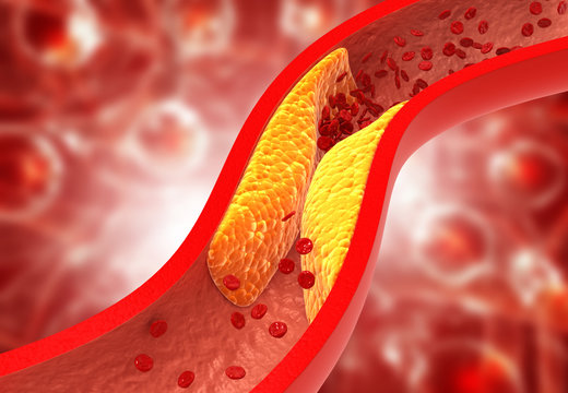 Clogged arteries, Cholesterol plaque in artery. 3d illustration