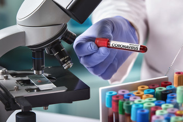 doctor in the laboratory with a blood tube for analysis and sampling of Coronavirus under the microscope / microbiologist with a tube of blood contaminated by Coronavirus and a sample of it analyzed