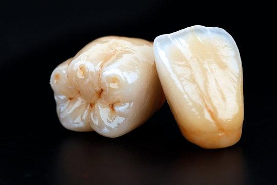 dental ceramic crowns, natural color effects