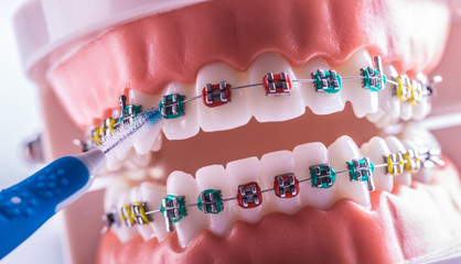 Tooth model from dental braces with inter dental teeth cleaning brush