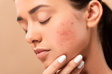 young woman with closed eyes touching face with acne isolated on beige