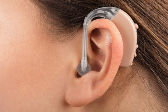 A girl with a hearing aid. The girl assumes hearing aid. Happy girl that hears well again. Hearing aid close up.