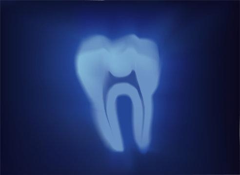 vector tooth xray illustration