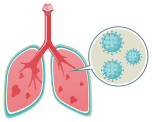 Diagram showing virus in human lungs on white background