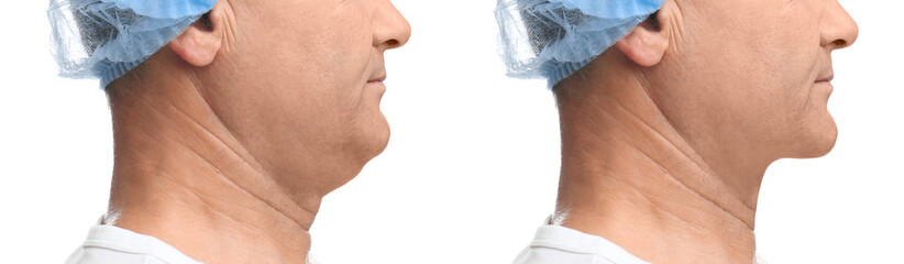 Mature man before and after plastic surgery operation on white background, closeup. Double chin problem Wall mural