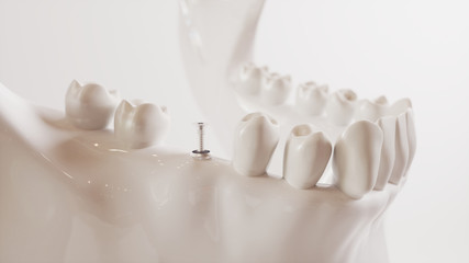 Tooth implantation picture series V02 - 4 of 8 - 3D Rendering