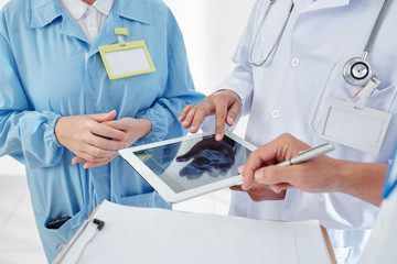 Group of physicians checking scull x-ray on tablet computer and planning surgery