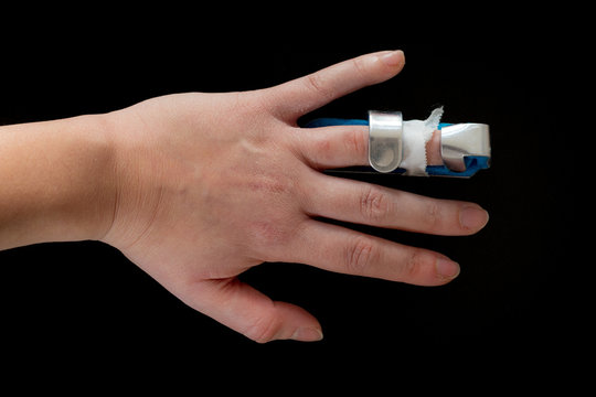 Female hand with broken finger in a splint, isolated on black background