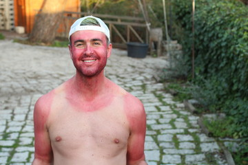 Sunburned young man with extreme tan lines