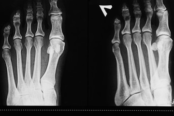 X-ray of the left foot of a person's leg, determination of injury, arthrosis disease
