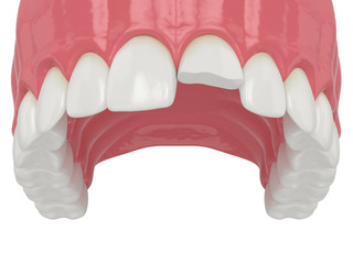 3d render of upper jaw with broken incisor tooth
