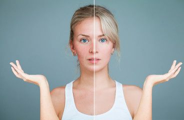Young Woman with hands raised. Perfect Skin and Skin Problem. Unhealthy and Healthy Skin After...