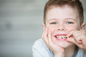 Teenager child with a tooth dropped out